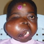 She Will be Beautiful Again Jacinta Before Treatment
