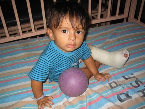 A young boy recovers from surgery. Photo courtesy of Operation Footprint.