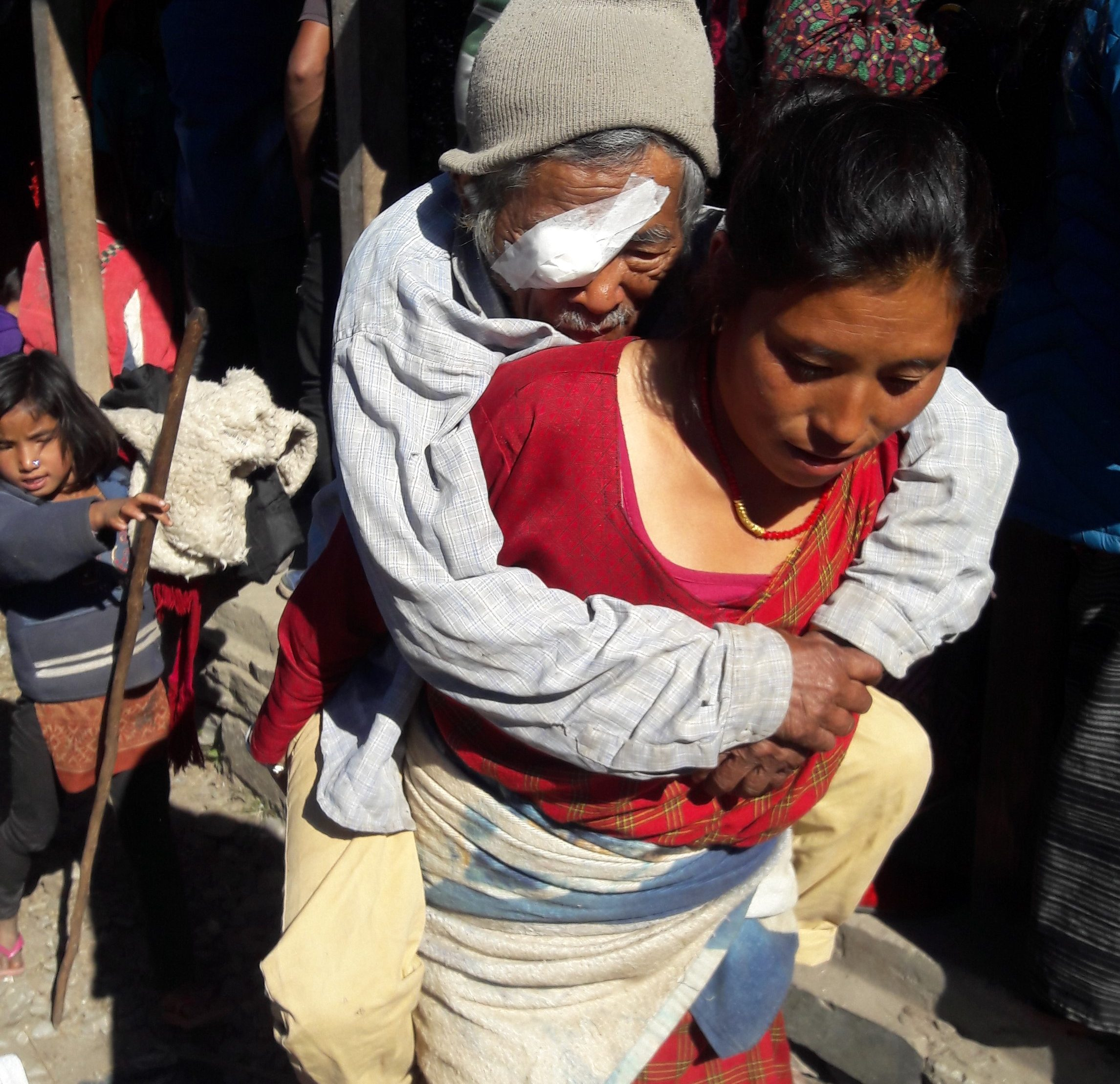 Access to care remains a hurdle for many in post-earthquake Nepal. This man was carried to care by his daughter-in-law, and the journey allowed him to receive cataract surgery, restoring his sight. (Direct Relief photo)